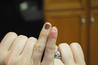 Tricia's finger 014