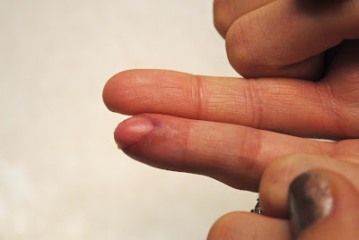 Tricia's finger 015